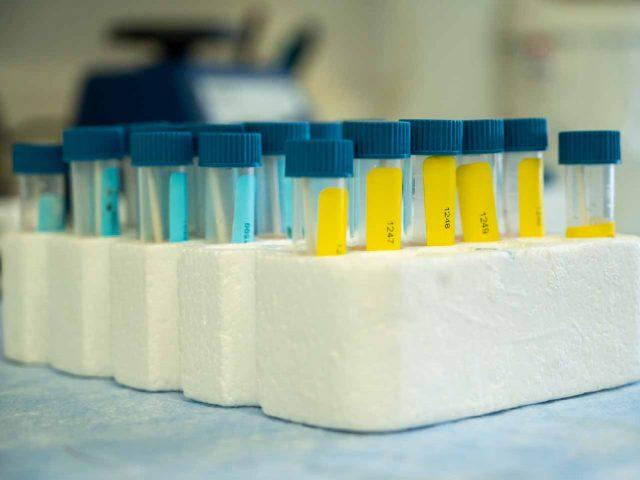 קרב מדע  – המירוץ להגדלת מספר הבדיקות